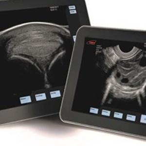 EXAPAD – portable ultrasound